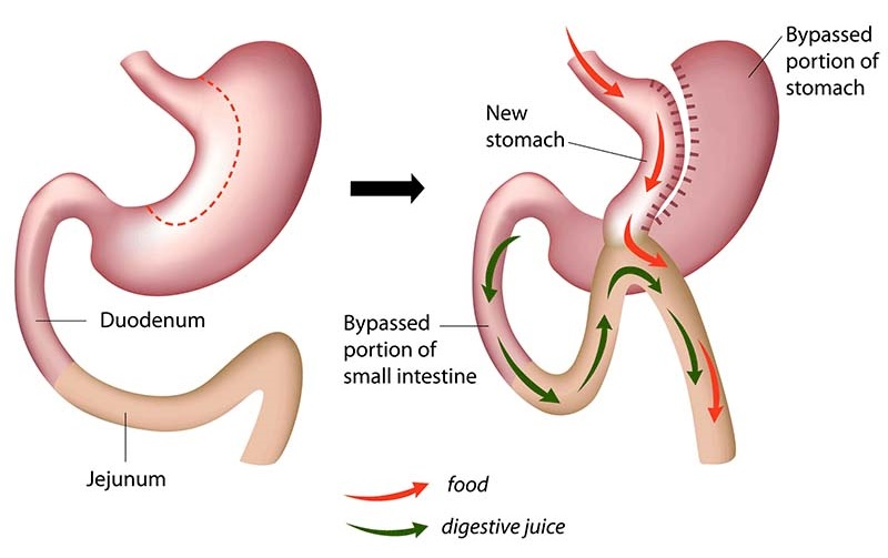 Sleeve gastrectomy illustration